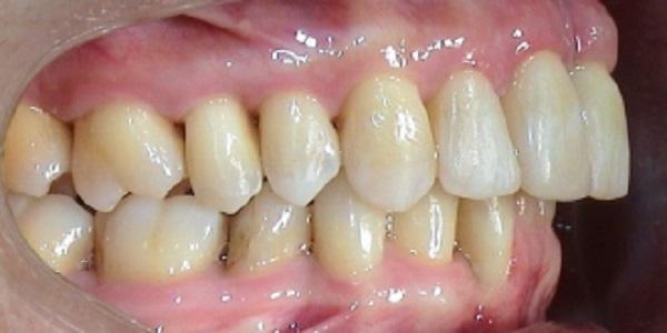 удаление мягкого зубного налета в стоматологической клинике