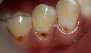 Несколько видов кариеса в зависимости от его размещения на зубе