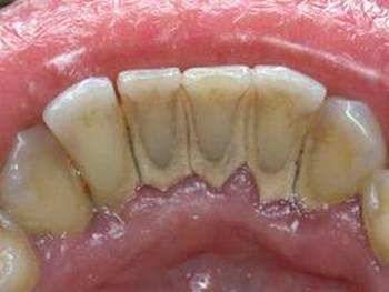 удаление твердого минерализированного зубного налета в стоматологической клинике Майстэрня Усмешки