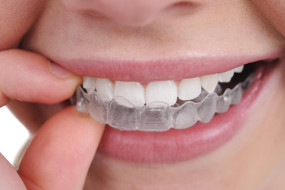 Зубная каппа для лечения бруксизма