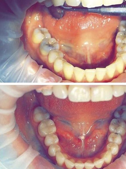 до и после лечения кариеса зубов в стоматологической клинике Майстэрня Усмешки