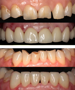 Керамическая реставрация зубов