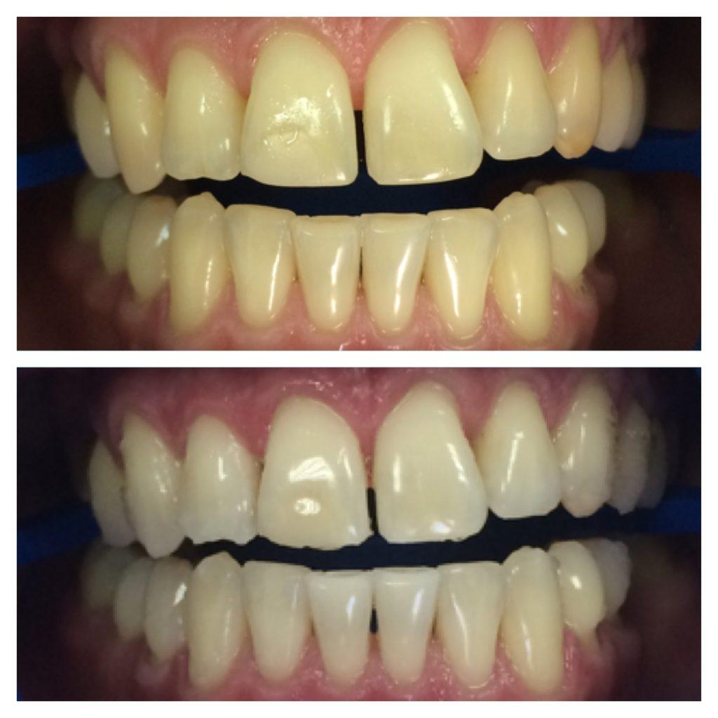 фото до и после отбеливания зубов в стоматологической клинике