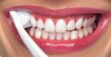 правильный метод чистки зубов