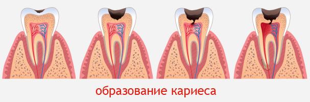 Лечение кариеса керамическими имплантами зубов цена в Минске