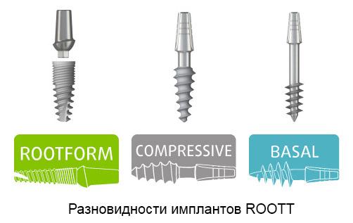 Материалы для имплантации зубов