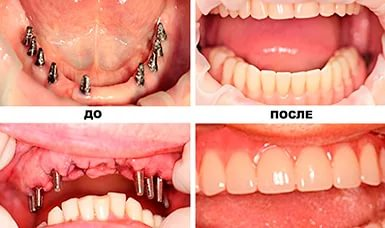 Базальная имплантация зубов до и после