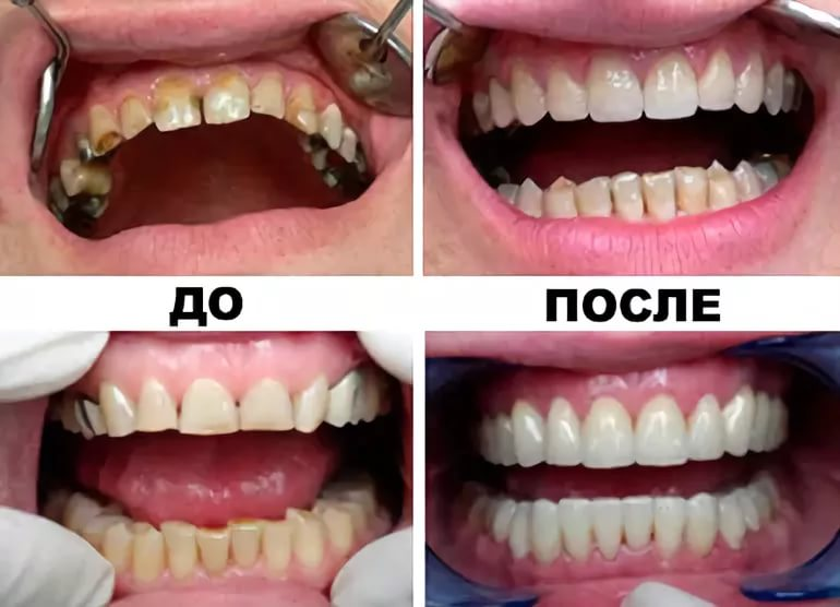 Многоэтапная реставрация зуба