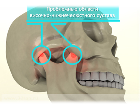 операция по замену сустава шейки бедра