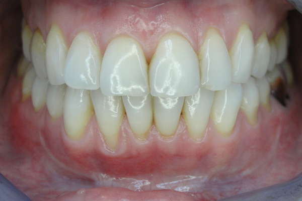Вестибулопластика после лечения