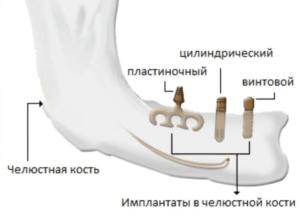 Внутрикостные импланты фото