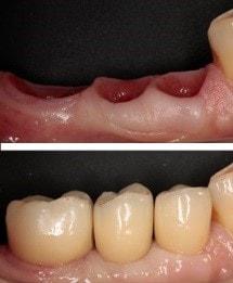 Установка зубного импланта цена и сроки лечения