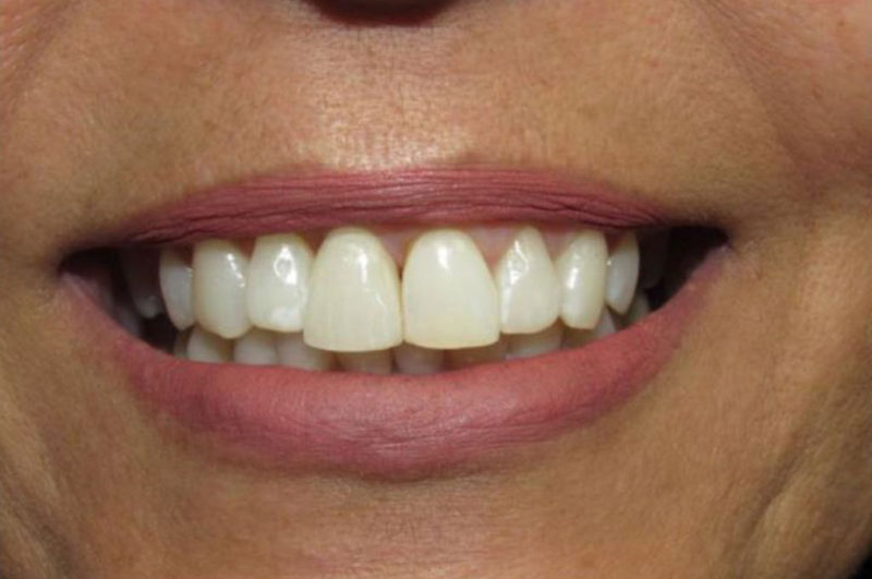 Одноэтапная имплантация зубов требования