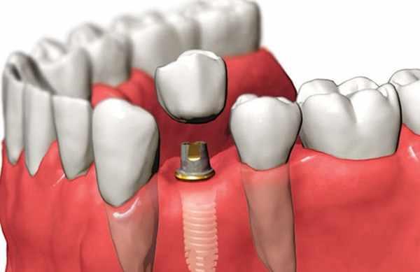 Одноэтапная имплантация зубов этапы