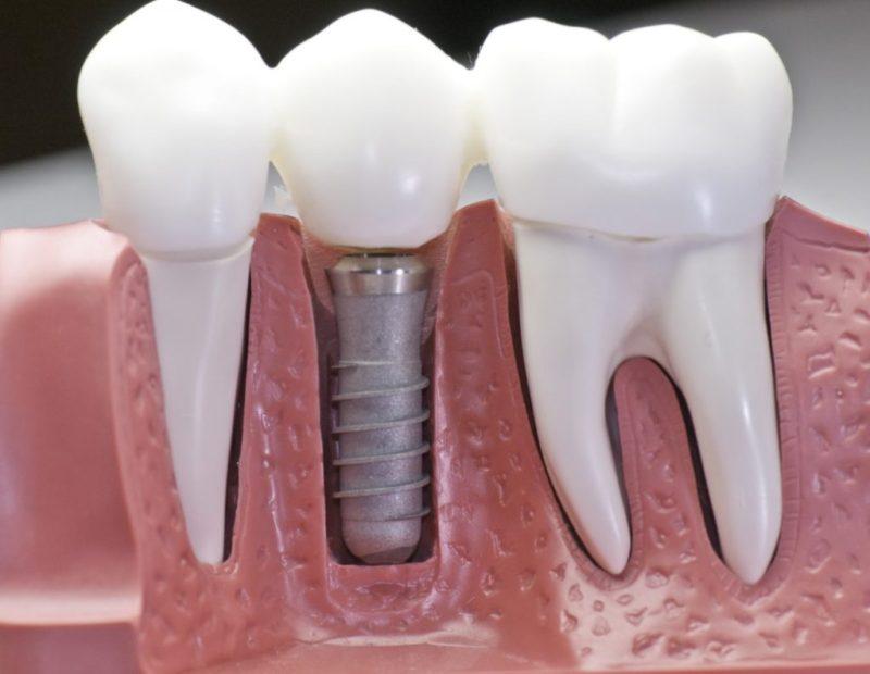 удалить зуб и удалить имплант зуба