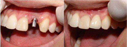 имплантация зуба до и после