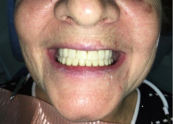 Атрофия костной ткани на обеих челюстях фото 16