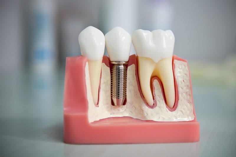 Дентальная имплантация зубов фото