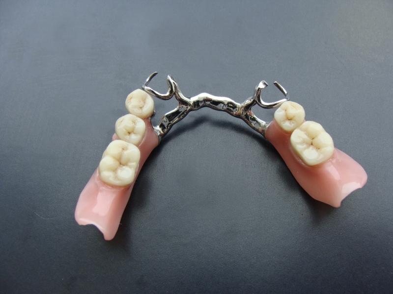 сьемное протезирование зубов