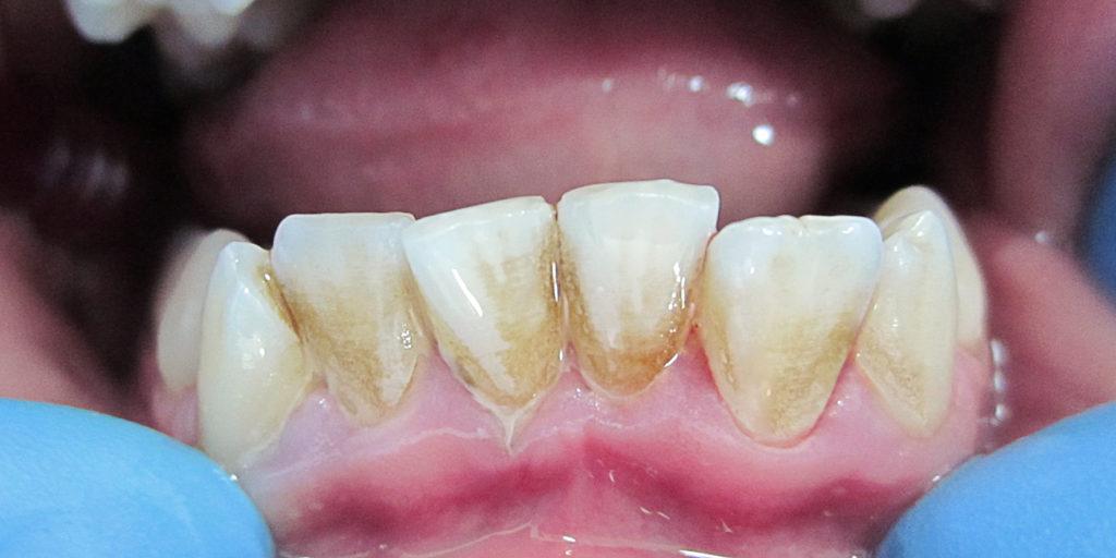 удаление твердого неминерализированного зубного налета в стоматологической клинике Майстэрня Усмешки