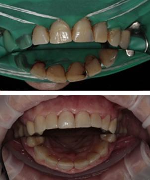 Комплексное лечение замена имплантов, перелечивание каналов, эстетическое удлинение зубов, установка коронок