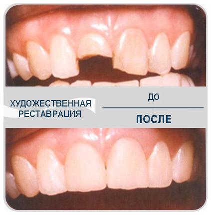 Одноэтапная реставрация зуба