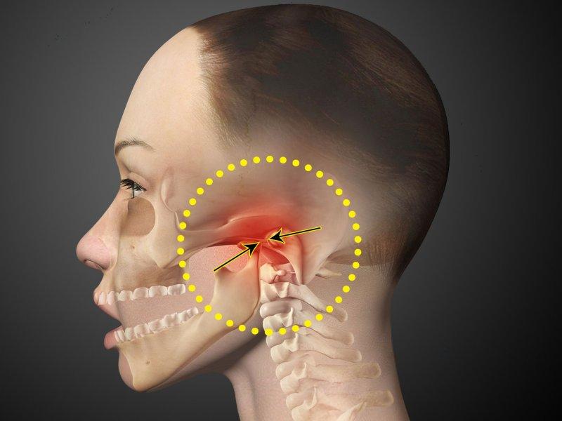 Болезни челюстного сустава
