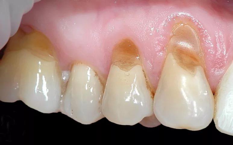 Некариозные дефекты зубов