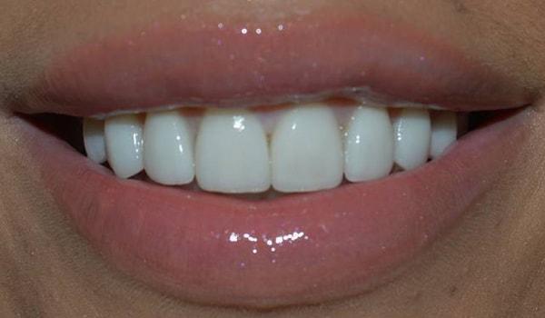 керамические импланты зубов