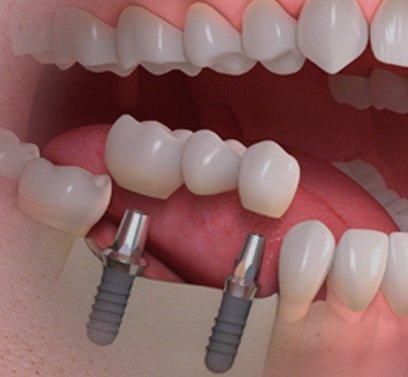 титановые импланты для зубов
