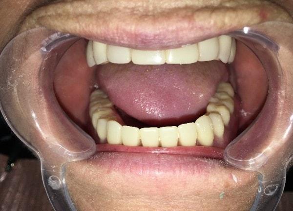 Атрофия костной ткани на обеих челюстях фото 15