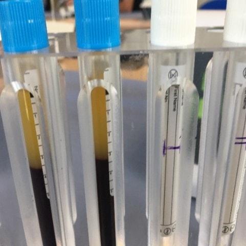 обогащённой тромбоцитарной массы PRGF®